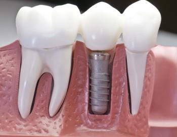имплантаты для зубов волгоград