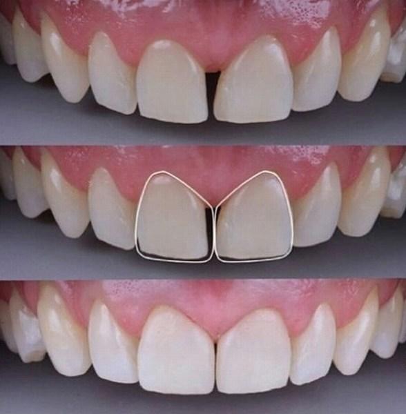 убираем щель между передними зубами