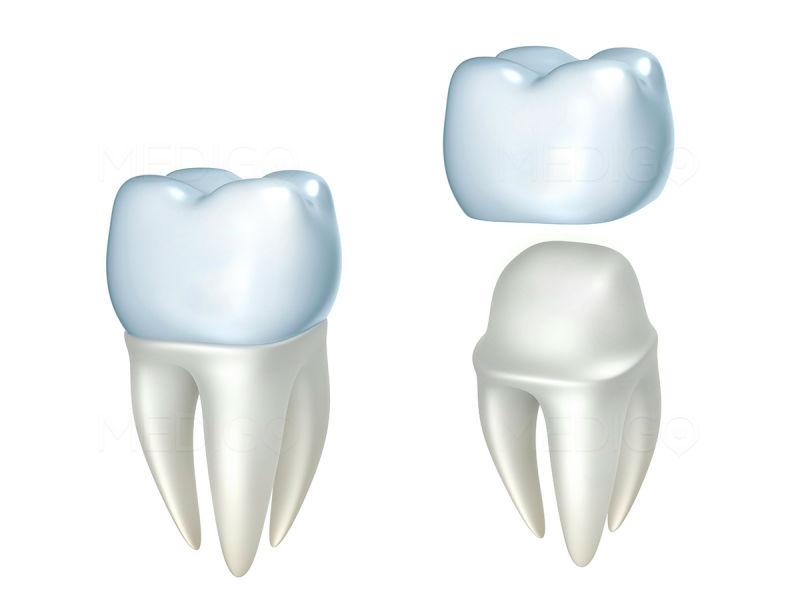 Стоматологические коронки